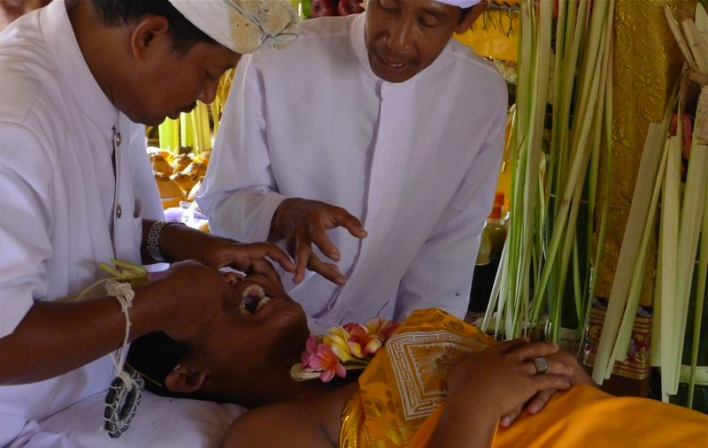 Unusual Rites Of Passage Bali Teeth Filing