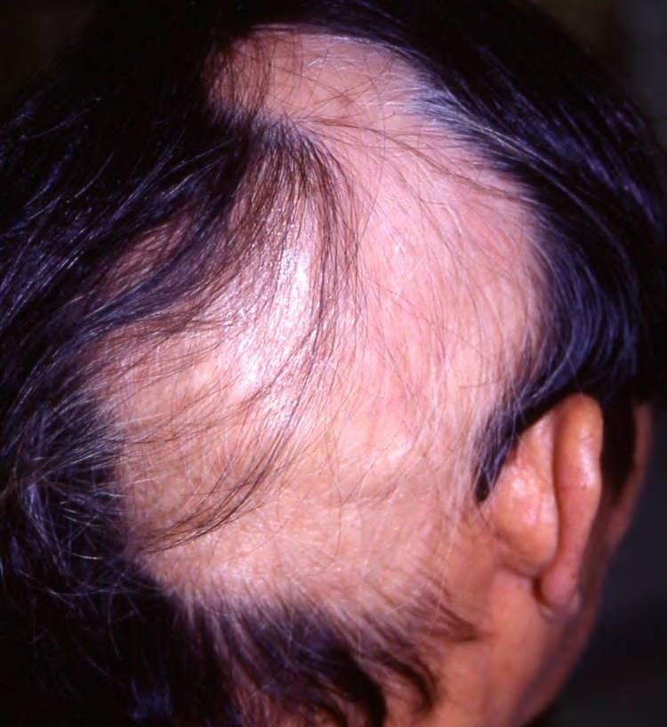 Weirdest Diseases Of The Human Body Trichotillomania