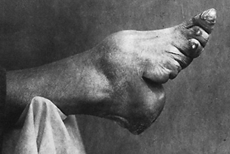 Foot Binding Photograph