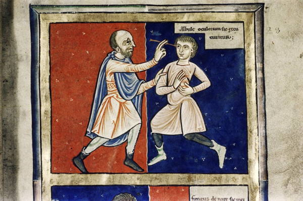 Painful Medical Procedures Of Medieval Times Cataract Removal