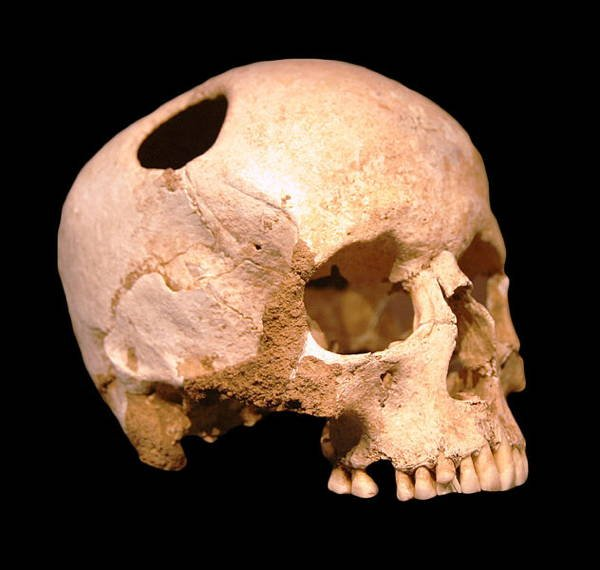 Medieval Trepanning Skull