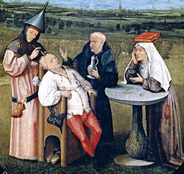 Painful Medical Procedures Of Medieval Times Trepanning