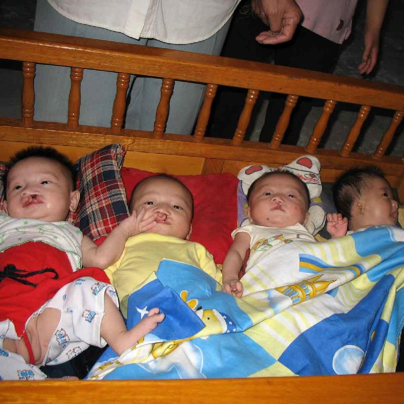 Cleft Babies Environmental Crisis In China