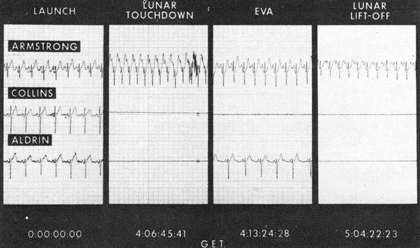 Neil Armstrong Heart Rate During Apollo 11