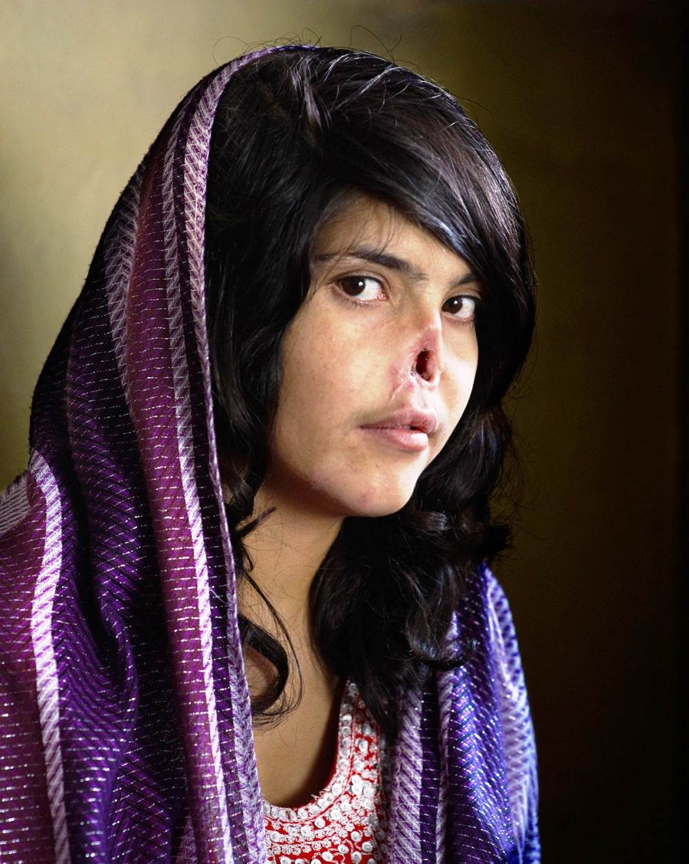 Afghan Woman Mutilated By Taliban