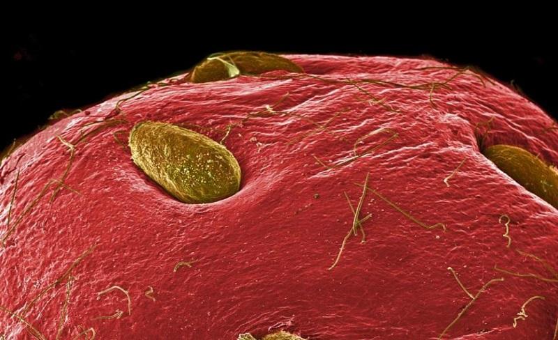 Strawberry Under Microscope