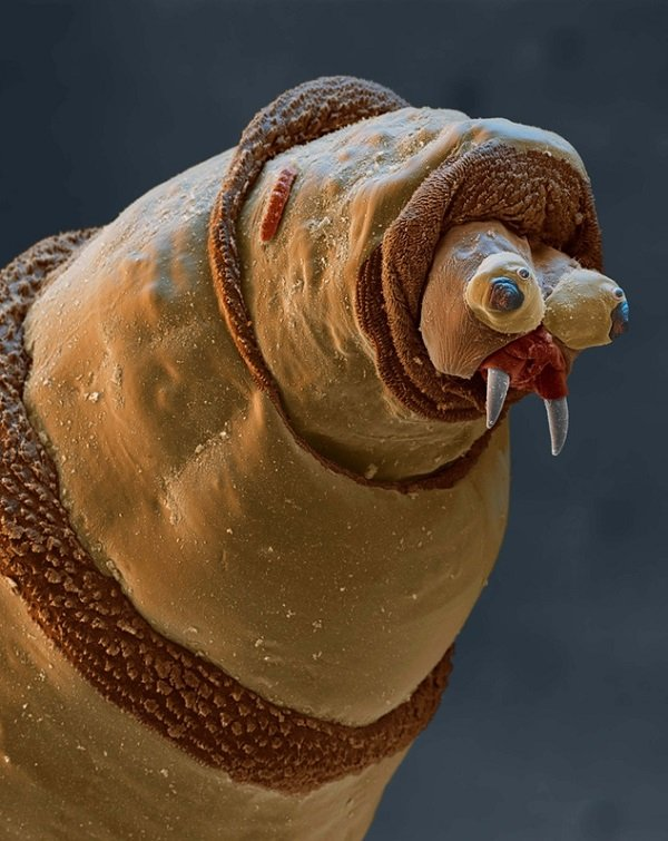 Microscopic Worm