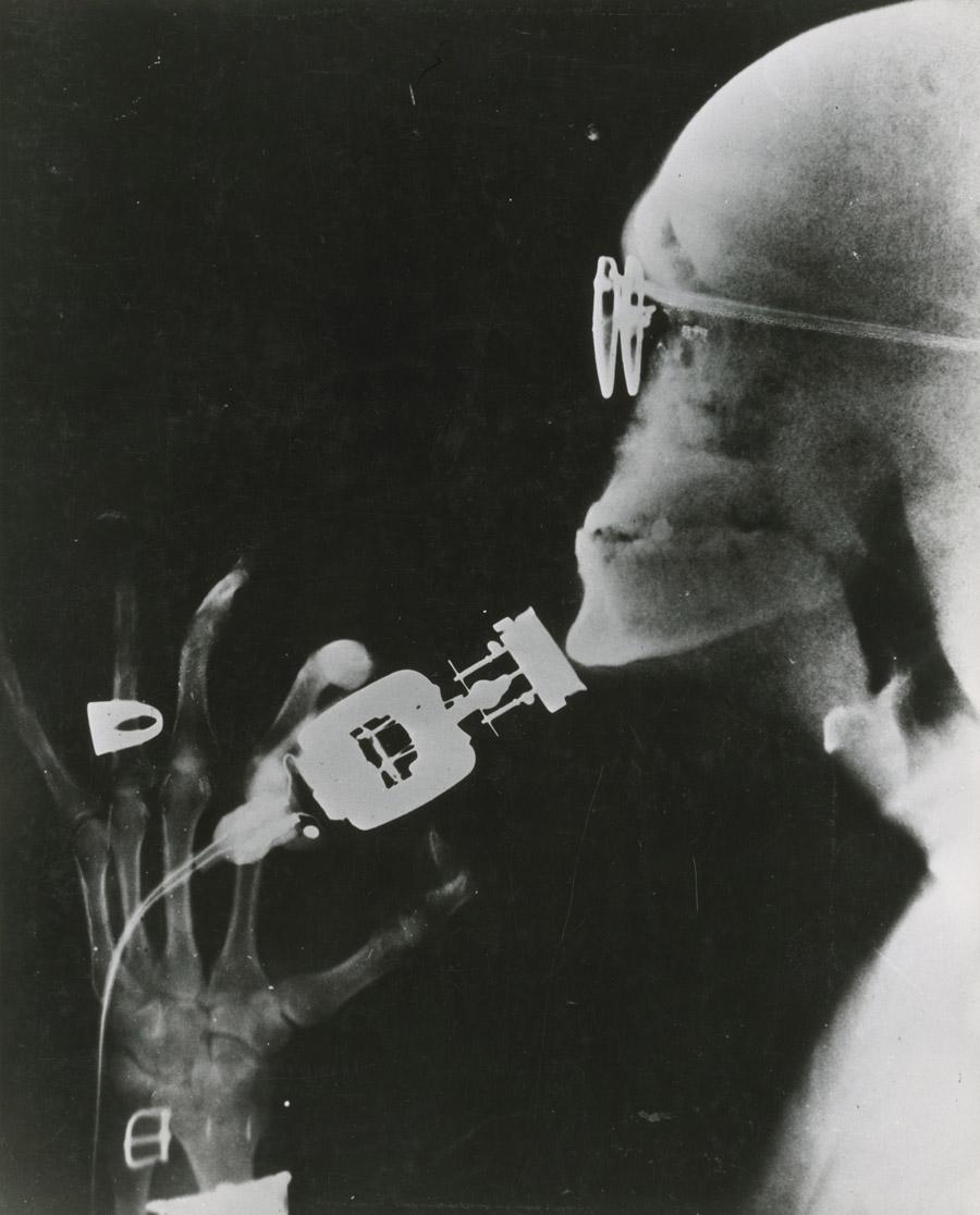 Razor X-Ray