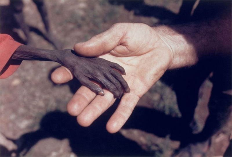 Hand Of A Starving Boy