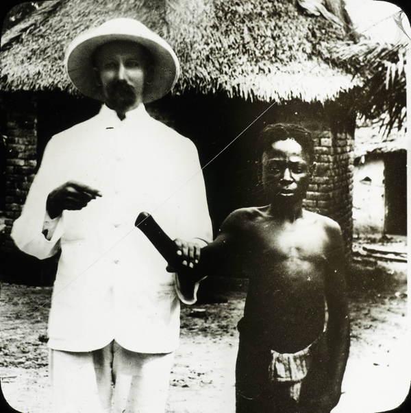 Amputee In Belgian Congo