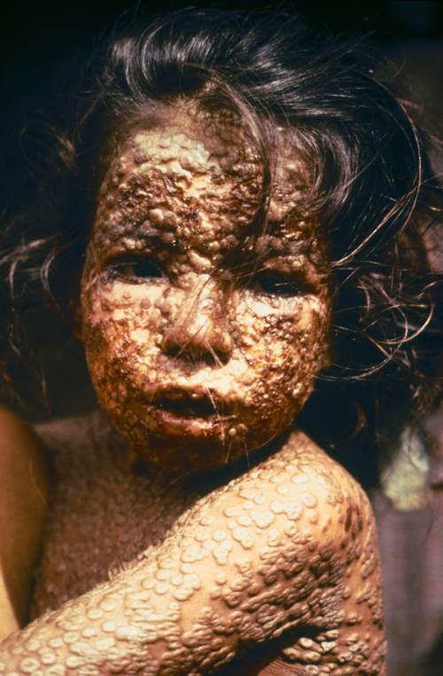 Worst Ways To Die Smallpox