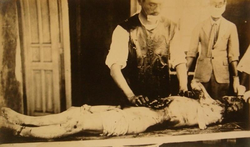 Unit 731 Patient Blood