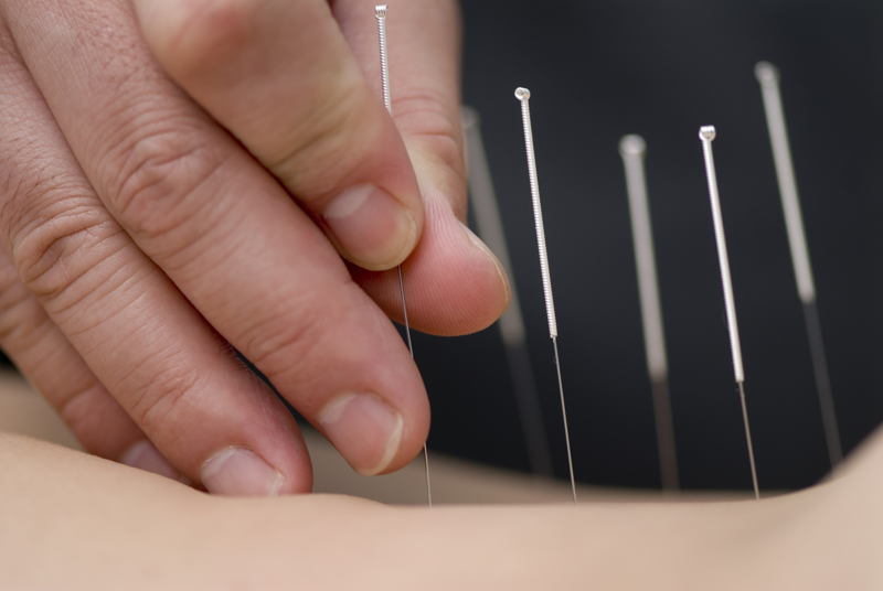 Legal Scams Acupuncture