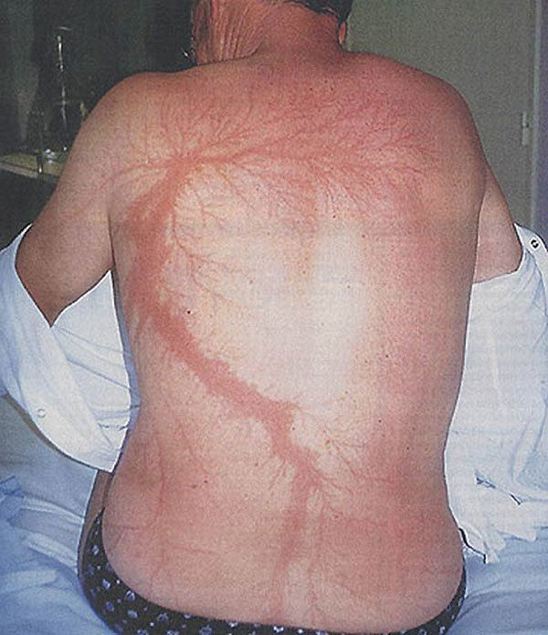 Lichtenberg Scar From Being Struck By Lightning