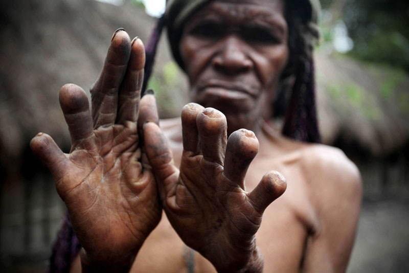 Interesting Articles Finger Cutting