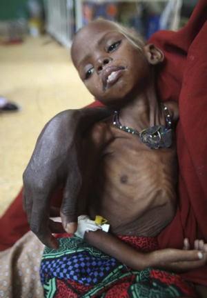 Global Poverty Somalia