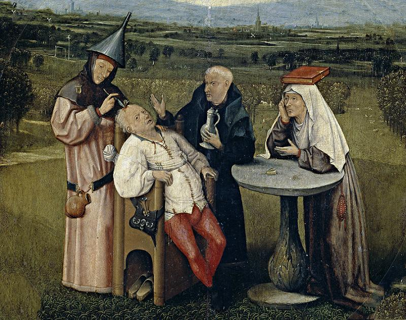 Mental Illness History Trepanation