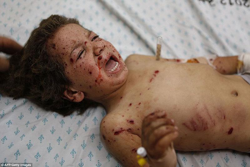 Child Injured from Israeli Airstrikes