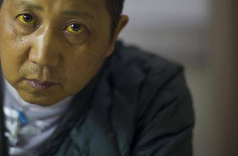 Chinese Cancer Villages Jaundice