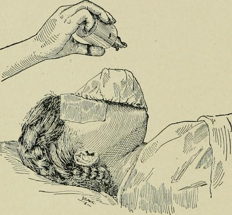 Midwife History Ether