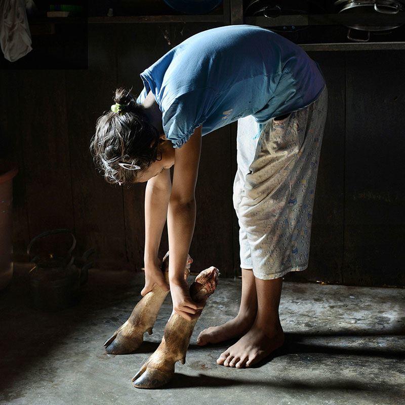 Khasi Girl Plays with Hoof