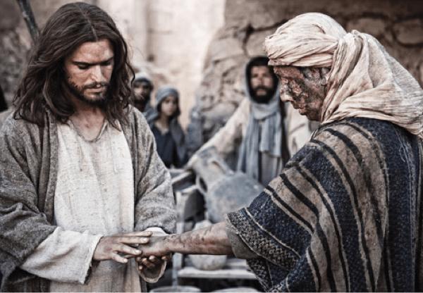 Leprosy History Jesus