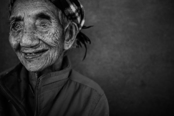 Leprosy History Old Woman