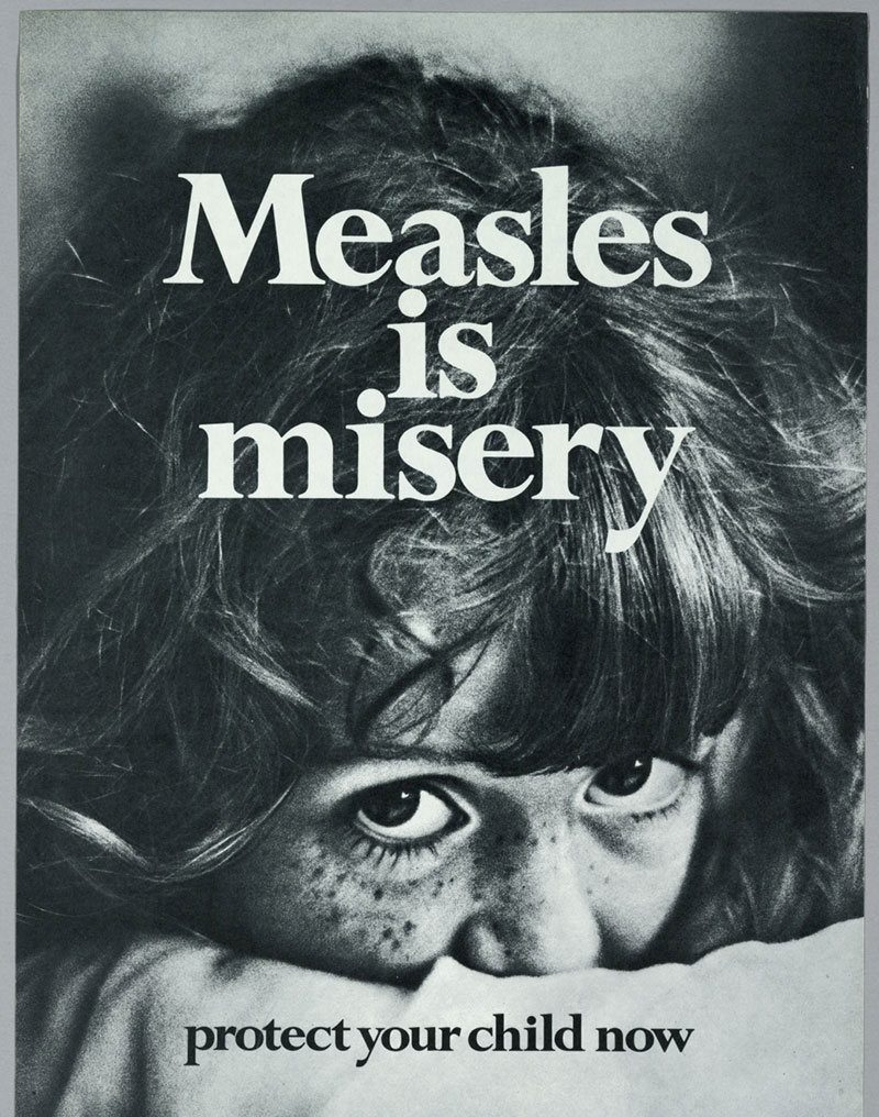 History of Measles Poster