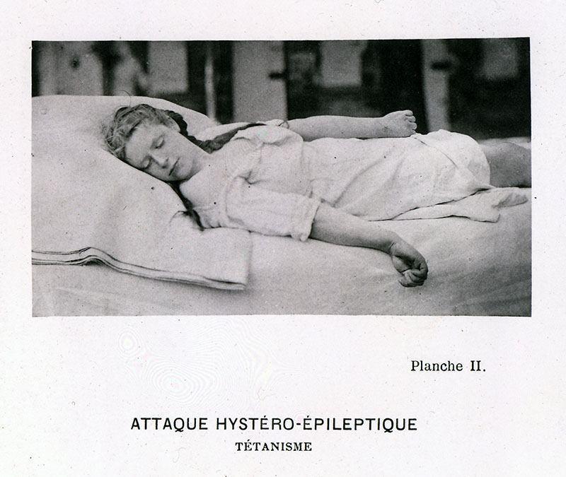 Sleeping Catalepsy