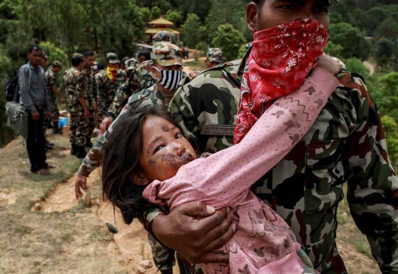 Injured girl Nepal