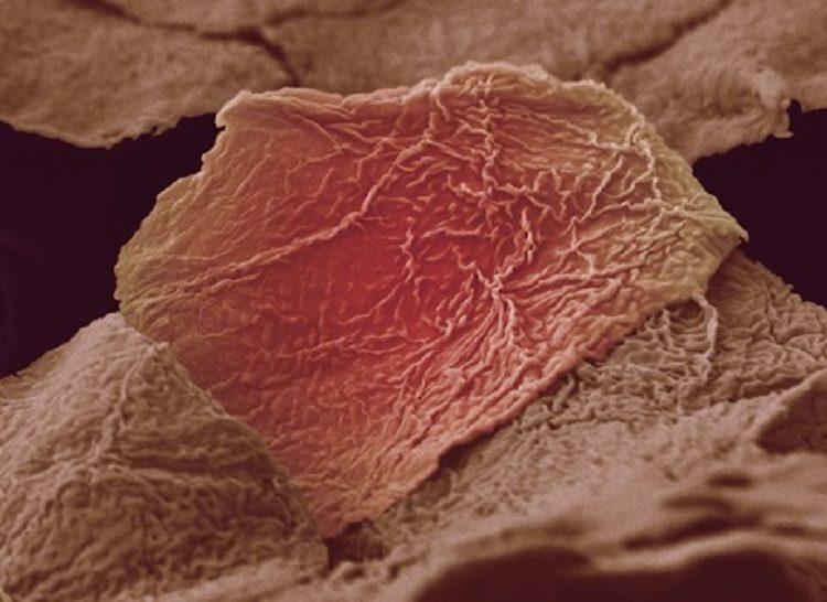 Blister Cells