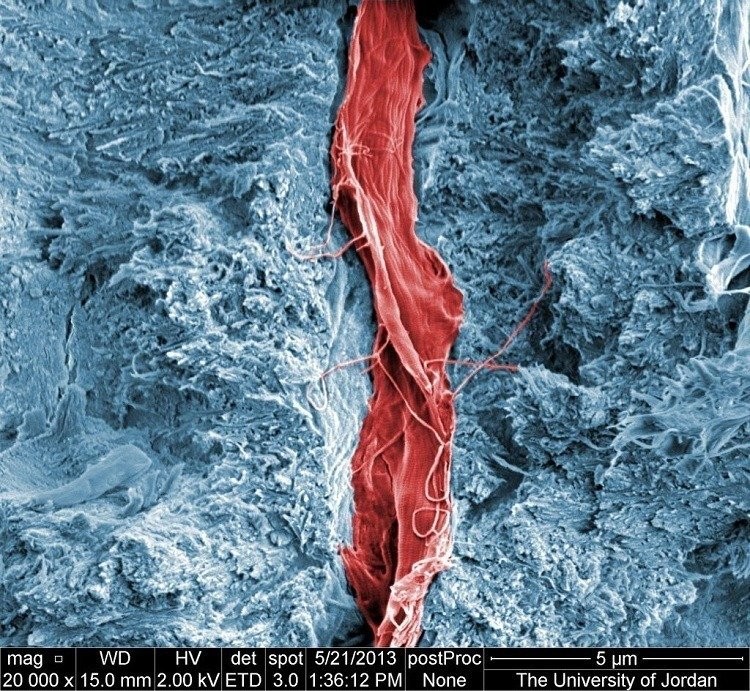 Tooth Cell