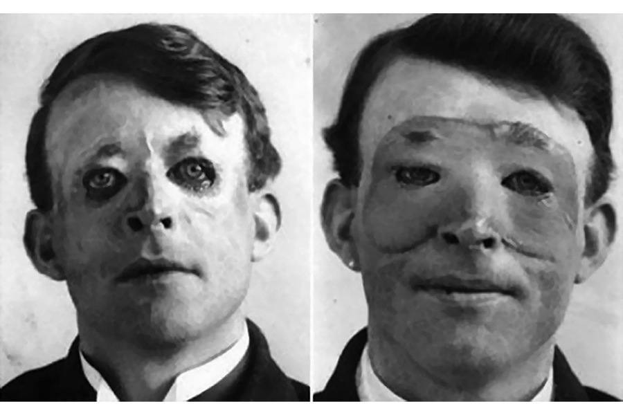 War Inventions Plastic Surgery