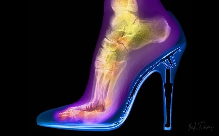 High Heel Shoe Xray