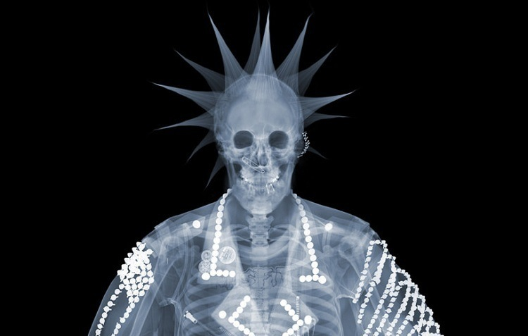 Oakland Raiders Fan X-Ray Photo