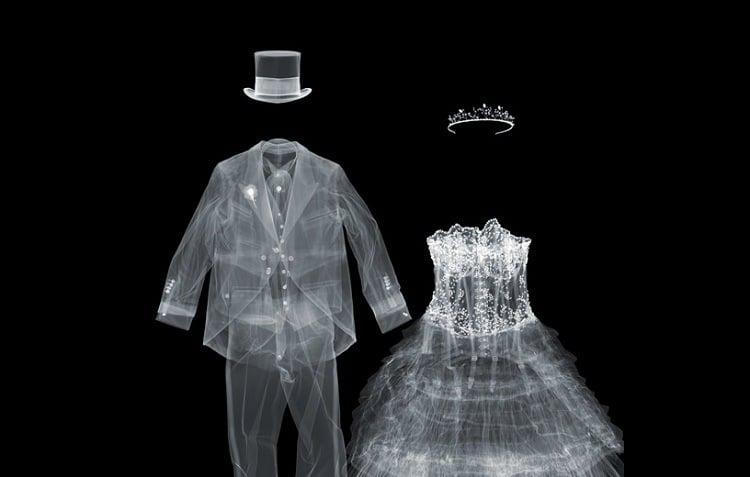 X Ray Wedding Ensemble