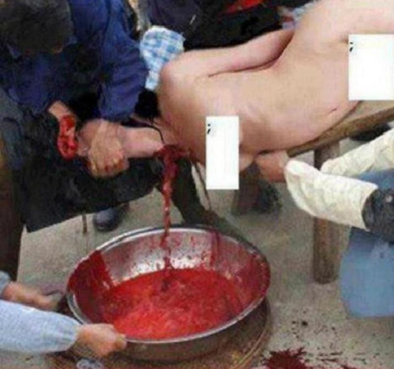 Life Under ISIS Throat Slit