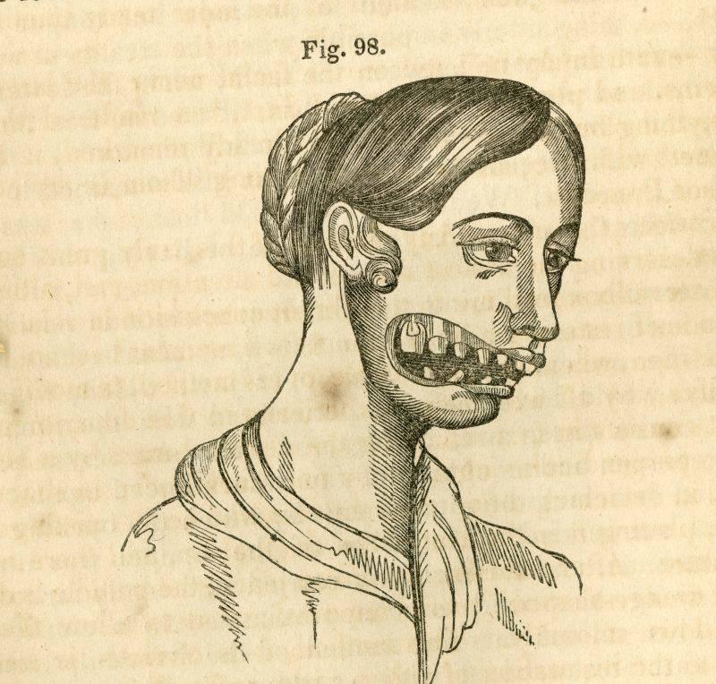 Анатомический рисунок, показывающий эффект фосфорной челюсти на зубы и лицо