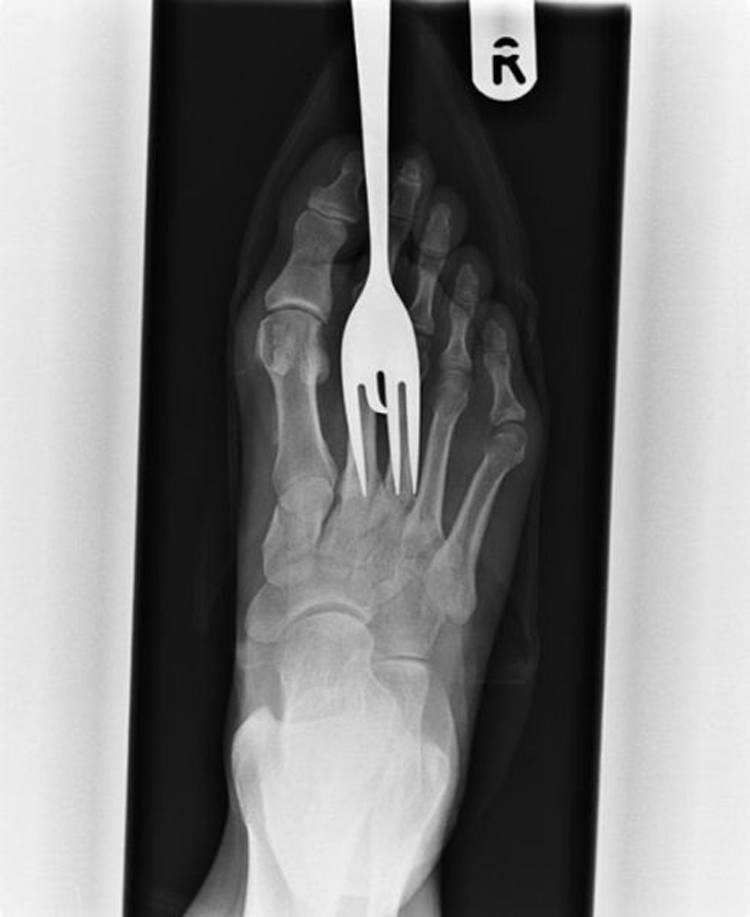 weirdest x-rays foot fork
