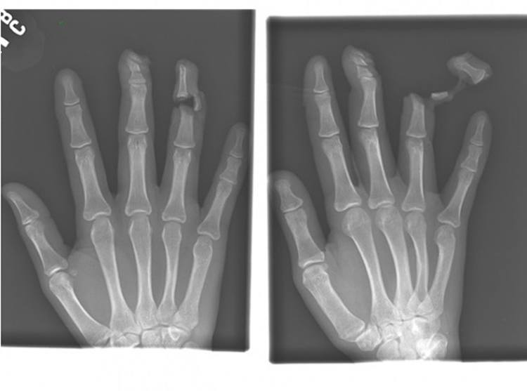 weirdest x-rays lacerated finger