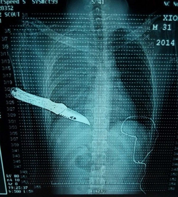 Funny X-Rays