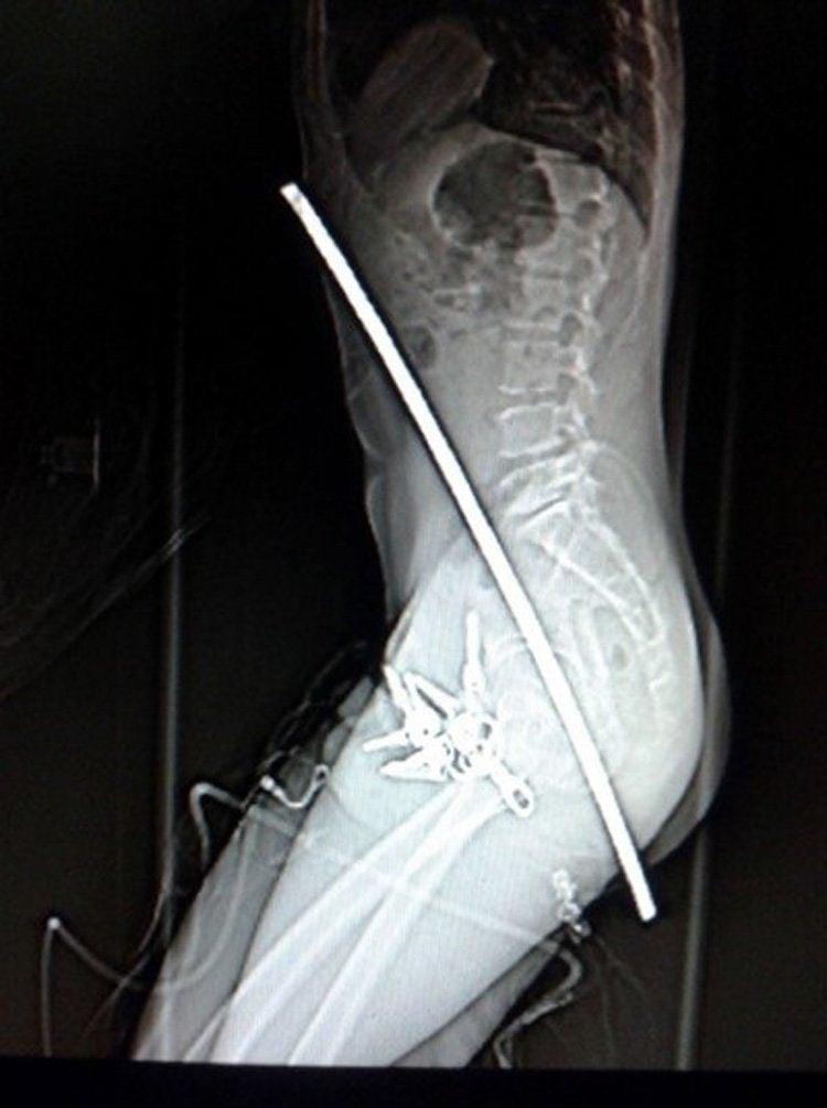 weirdest x-rays standing bar