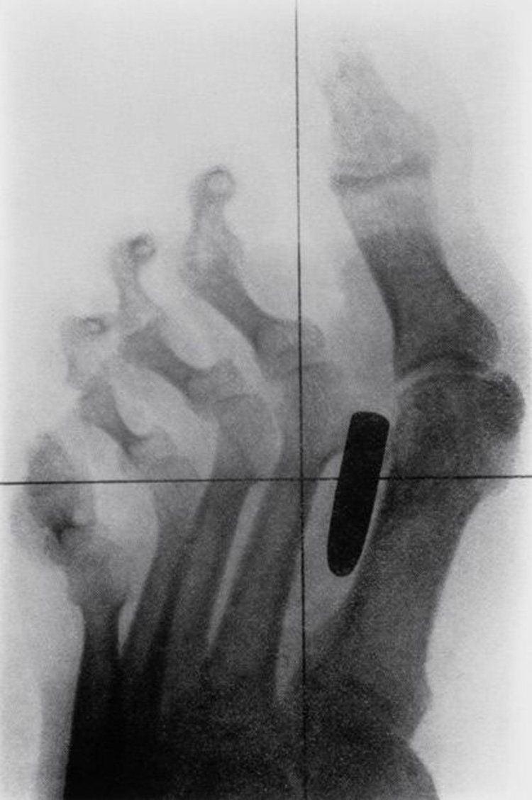 weirdest x-rays toe bullet