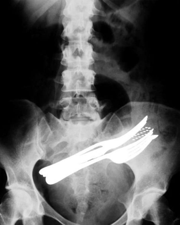 Unbelievable X-Rays