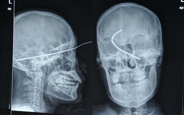 weirdest x-rays welding rod