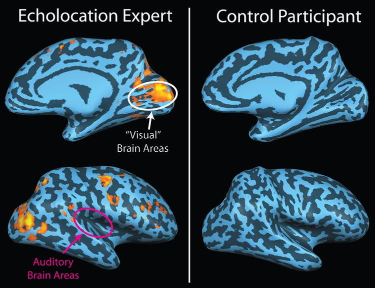 Human Echolocation Fmri