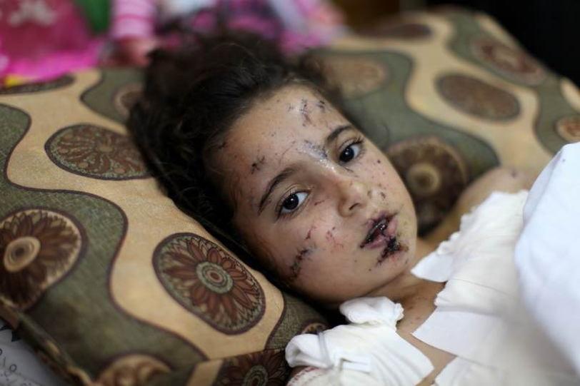Occupied Palestine Girl Harmed