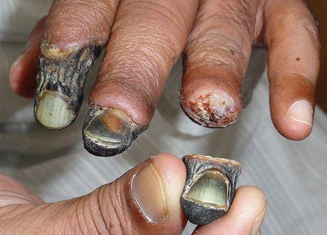 Krokodil Gangrene Hand