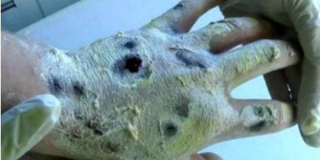 Krokodil Necrotic Hand