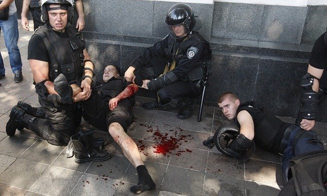 Protests Wounded